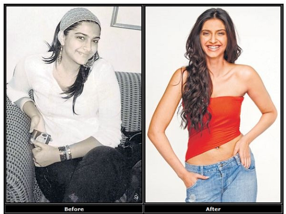 Sonam-Kapoor-From-Fat-To-Fit-weightloss